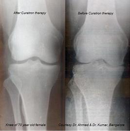 Cartilage-regrowth-for-the-Hip-and-the-Knee
