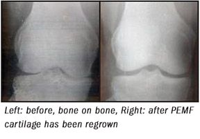 XRAY shows PEMF stimulated cartilage regrowth in the knee