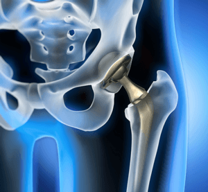 bone surrounding joint implants can be strengthened with PEMF