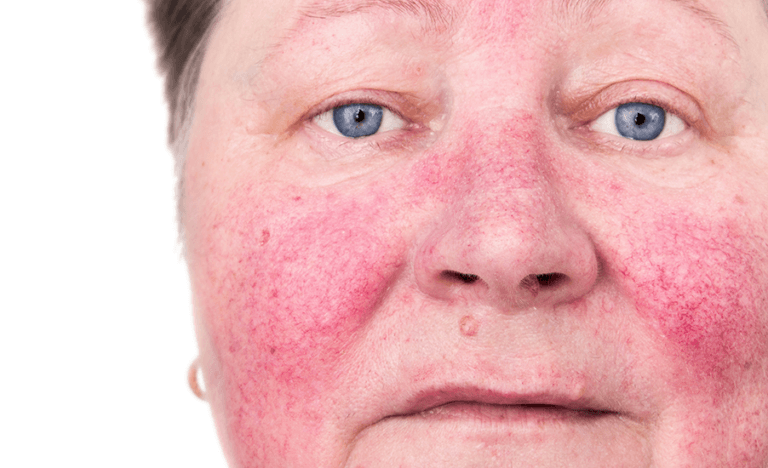 Treating Rosacea with PEMF