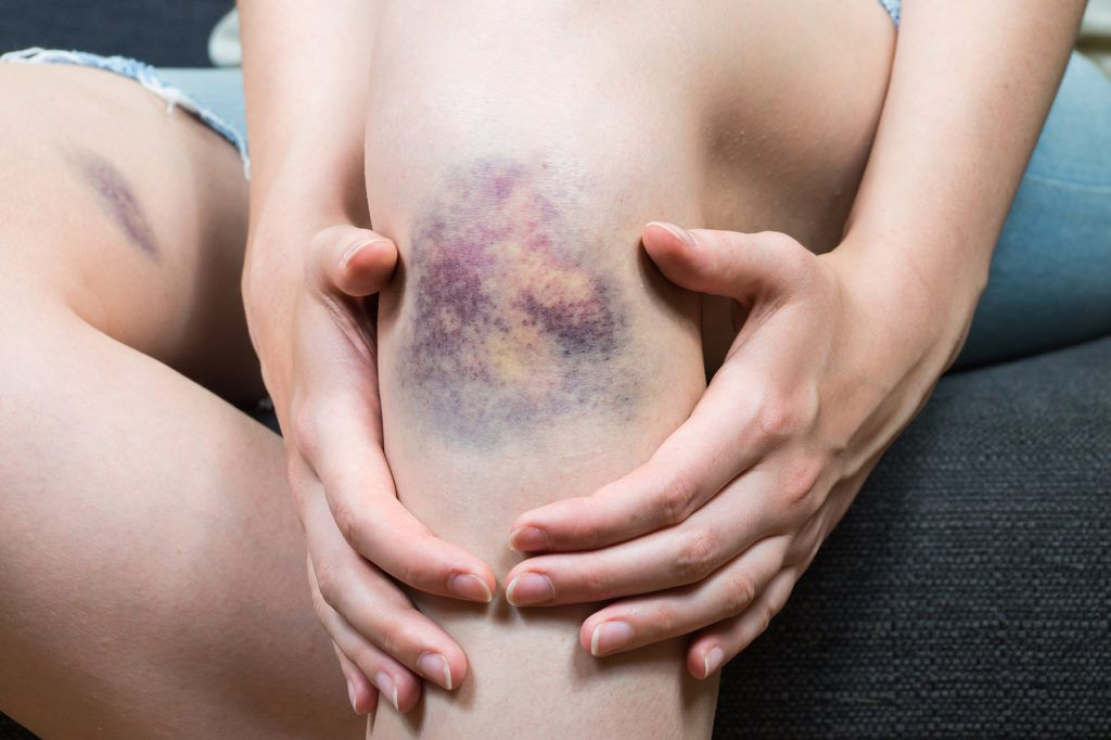 healing wounds and bruises with PEMF