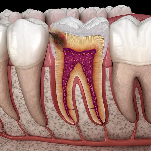 Infected teeth can be treated with PEMF