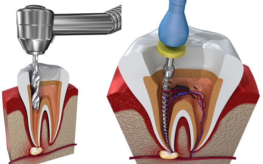 PEMF can prevent the drilling and filing of teeth